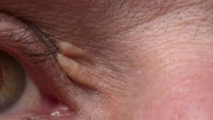 What Causes Yellow Eyelids?