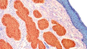 What Is the Difference Between Carcinoma and Sarcoma?