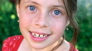 Are Freckles a Dominant or Recessive Trait?