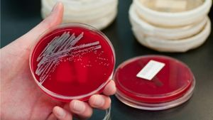 How long does staph live on surfaces?