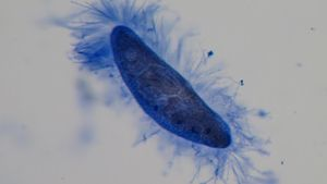 What Kingdom Does a Paramecium Belong To?