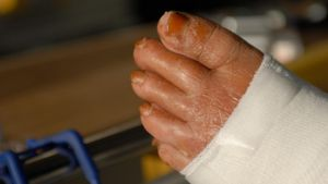 How Long Does It Take Cellulitis to Heal?
