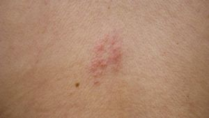 How Long Is Shingles Contagious?