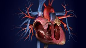 What Is the Main Artery in Your Body?