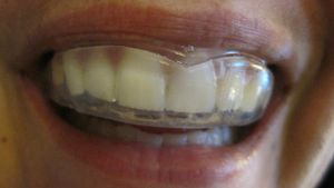 Does a Mouth Guard Help With Teeth Grinding?