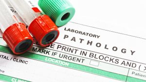 What Are the Parts of a Lab Report?