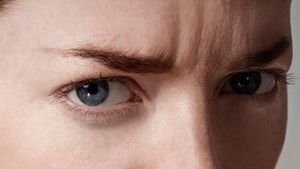 How Do You Get Rid of Frown Lines Between the Eyebrows?
