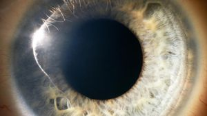 What Does the Cornea Do?