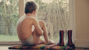 What Is the Life Cycle of Chicken Pox?