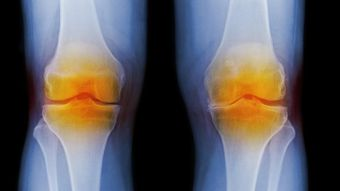 What Are the Symptoms of Arthritis in the Knee?