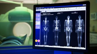 What Is a Bone Scan?