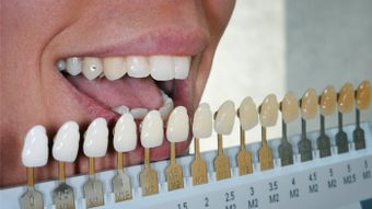 Can Fake Teeth Be Whitened?