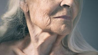 What Causes Premature Wrinkling of the Skin?