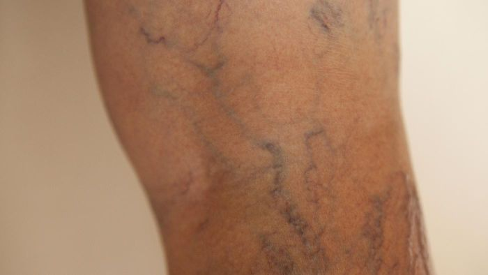 How Do You Prevent Varicose Veins?