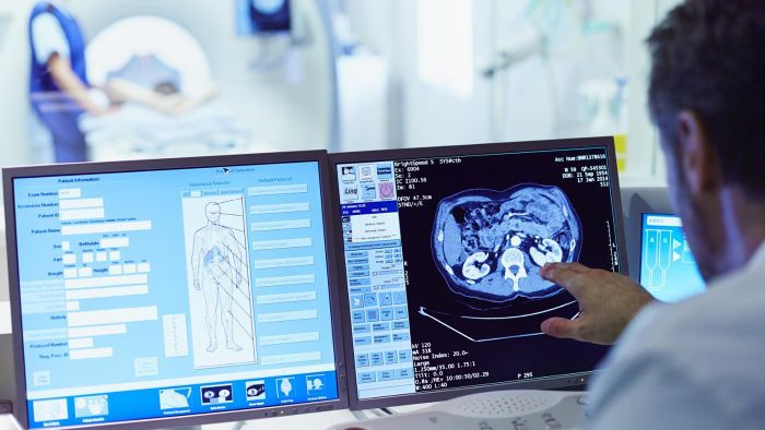 What Are the Advantages and Disadvantages of CT Scans?
