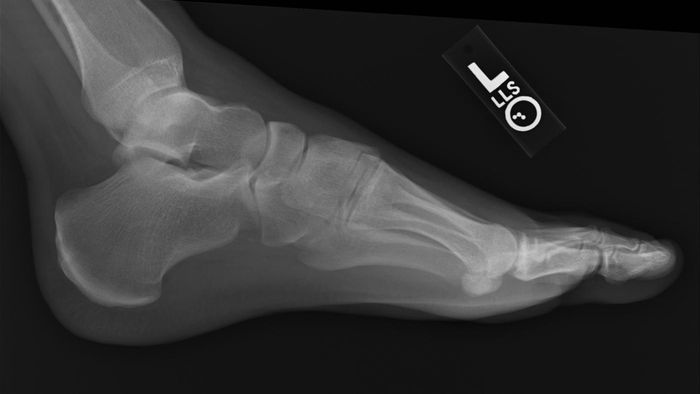 Do Africans Have an Extra Bone in Their Foot?