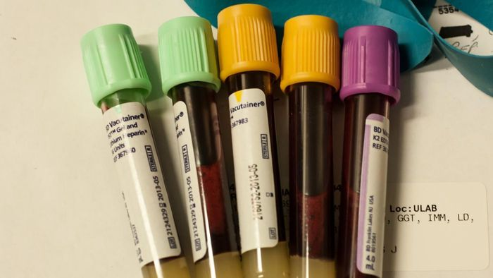 What Are Blood Tests Everyone in Their 40's Should Get Regularly?