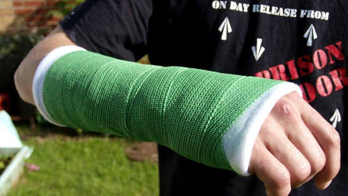 How do you break your wrist?