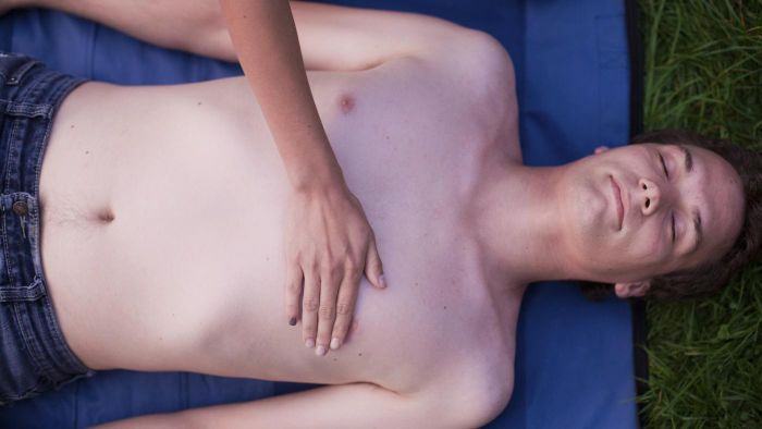 What is a bruised sternum?