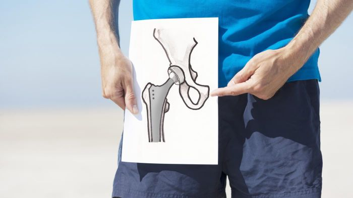 What Is Bursitis of the Hip?