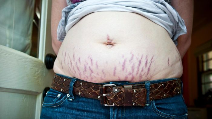 How Can You Cure Stretch Marks?