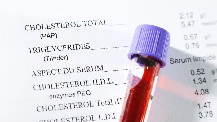 How Can You Maintain Normal Cholesterol Levels?