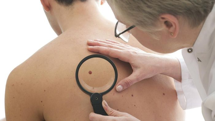 Where Can You Find Pictures of Melanoma Cancer?