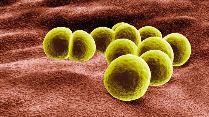 Where Can You Find Pictures Showing the Early Stages of MRSA?