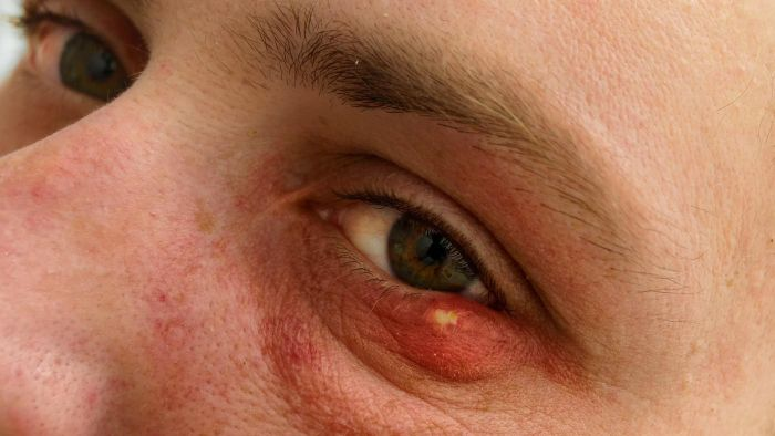 Can You Pop a Stye?