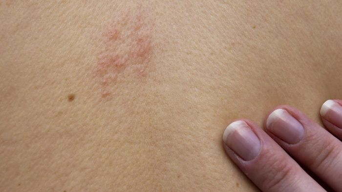 How Can Someone Find Out If They Are Immune to the Shingles Virus After Contracting It?