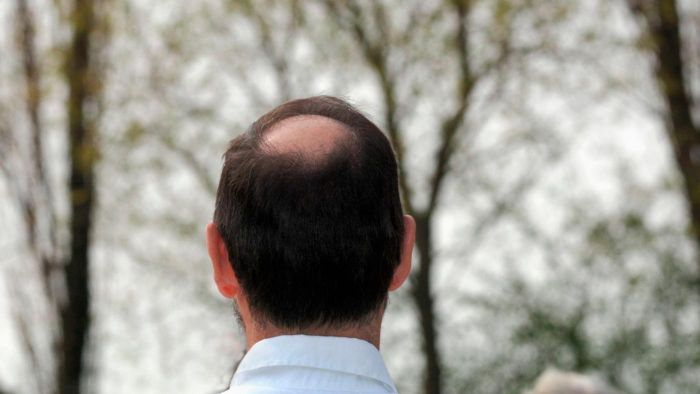 How Can I Tell If I Am Going Bald?