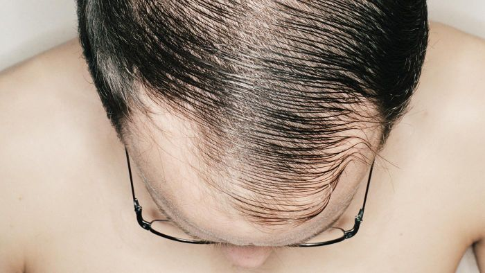 How Can Thinning of Hair Be Stopped?