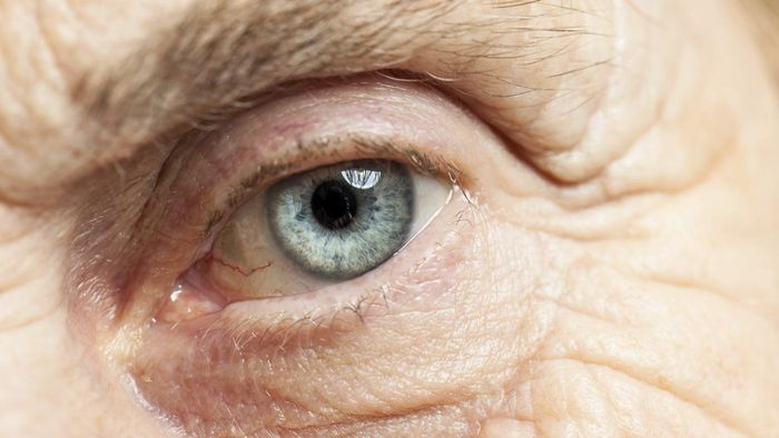 What Is a Cataract Surgical Operation?