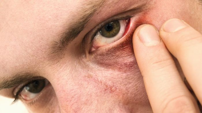 What Causes Eye Styes?