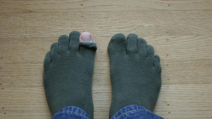 What Causes Gout in the Big Toe?