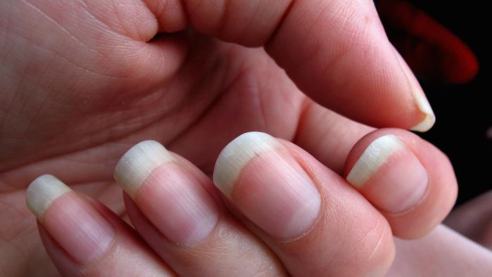 What causes muscle cramps in hands?