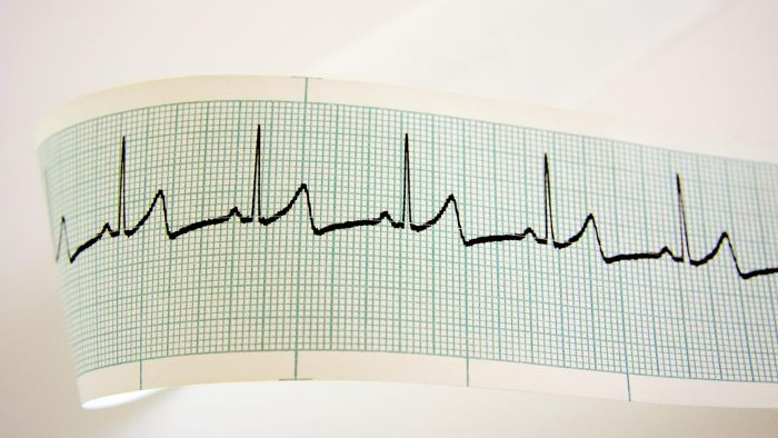 What Causes a Rapid Heartbeat?