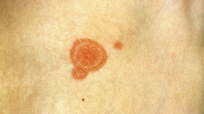 What causes ringworm?