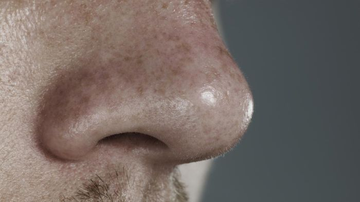 What Causes Sores Inside the Nose?