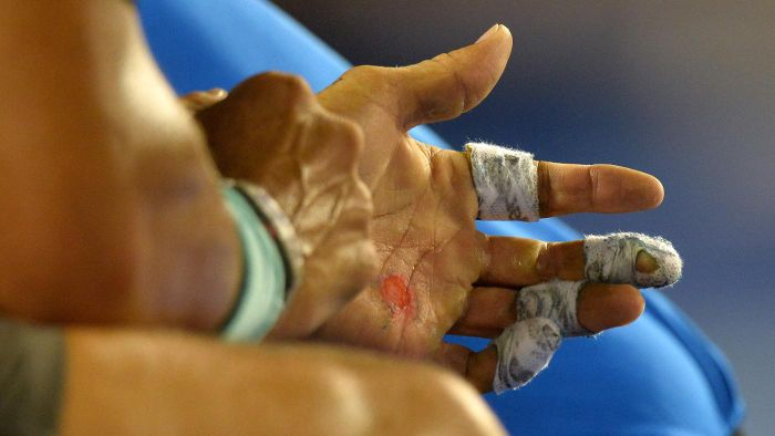 What Causes Water Blisters on the Hands?