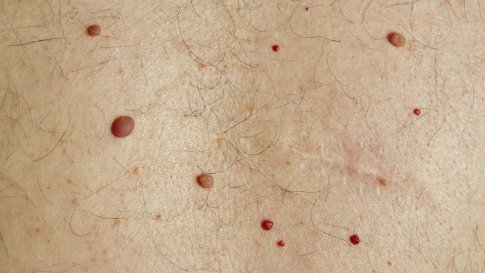 What are cherry angiomas?
