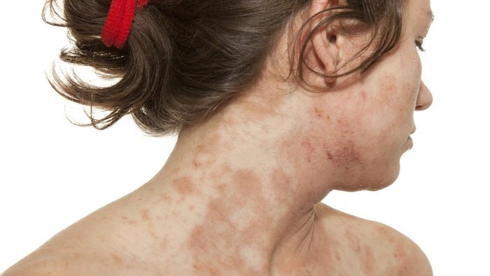 What are common skin rashes?
