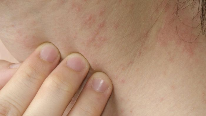 What Are the Most Common Types of Skin Rashes?