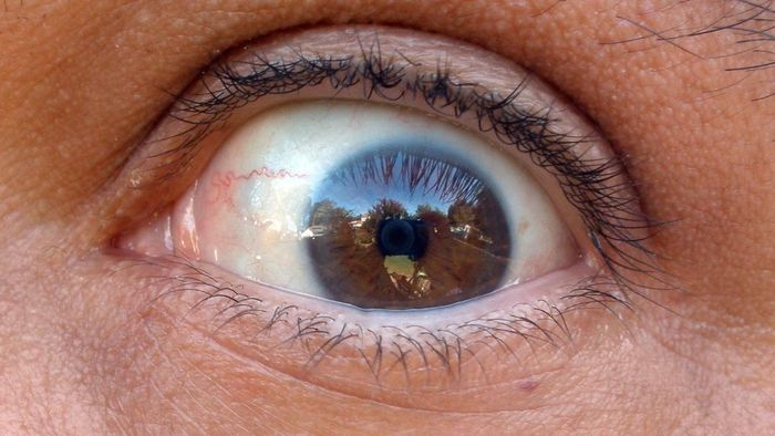 What Conditions Can Be Identified by an Image of an Eye?