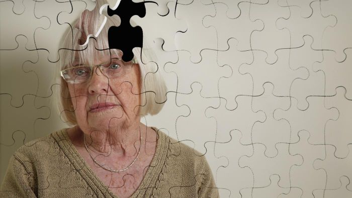 When Do Dementia Symptoms Start?