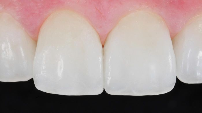 Are dental veneers covered by insurance?