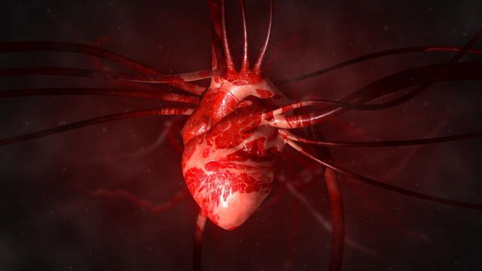 What is an enlarged artery from the heart?