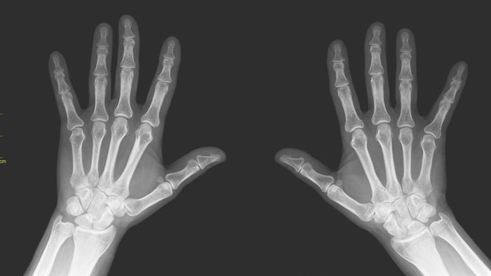 What Are All the Finger and Toe Bones Called?
