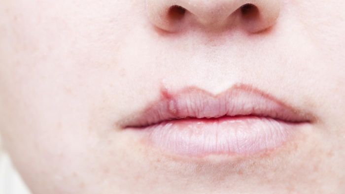 What Is the First Sign of Lip Cancer?
