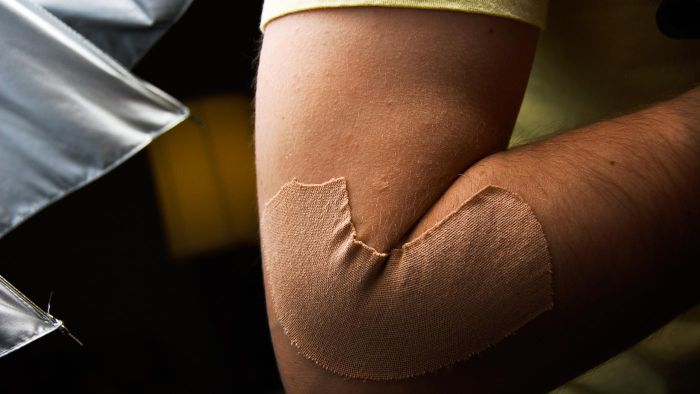 What Is the Flap of Skin on Your Elbow Called?